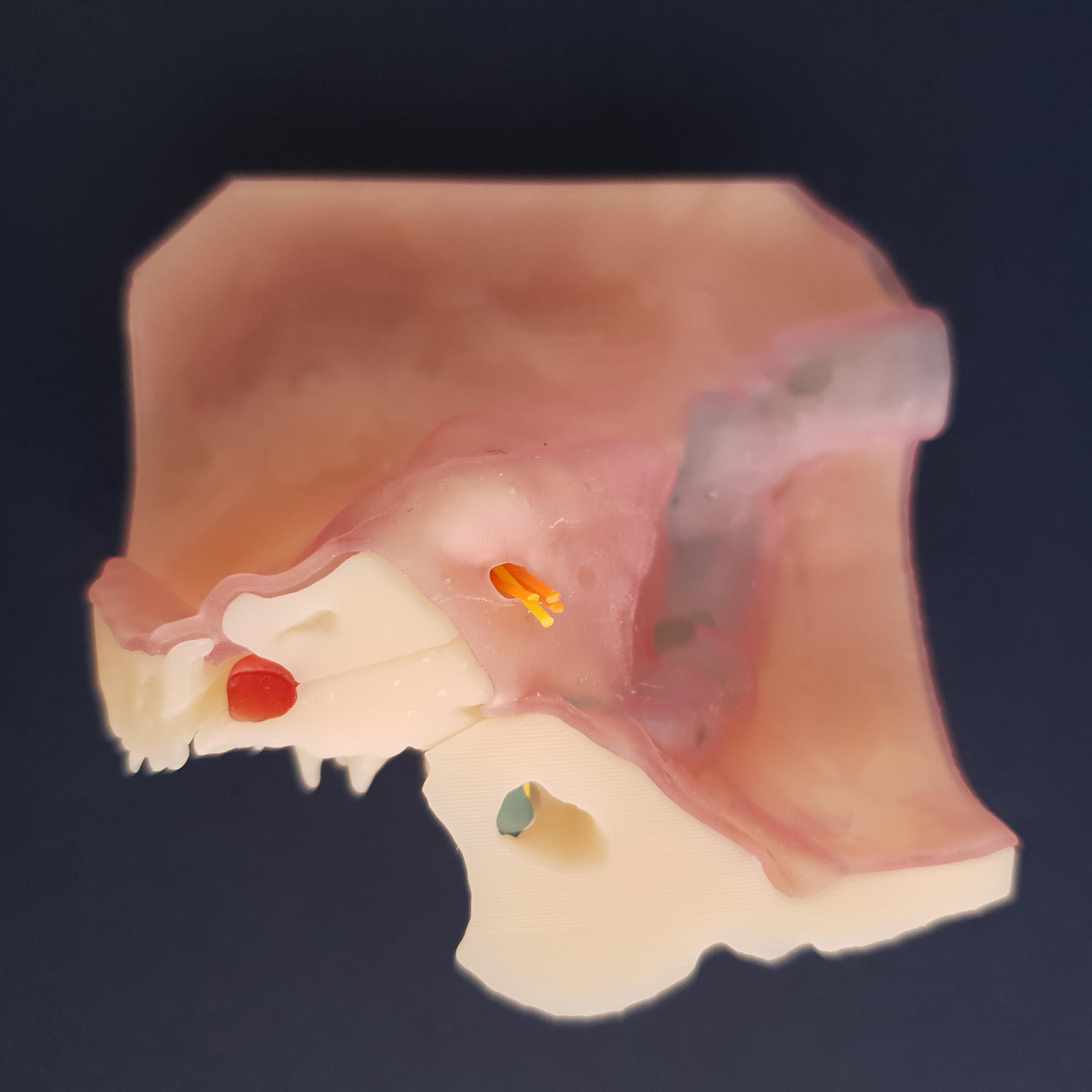 Auris-Otobone 06